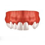 Zahnarzt Saarbrücken Implantate Einzelzahnersatz 1
