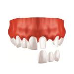 Zahnarzt Saarbrücken Implantate Einzelzahnersatz 2