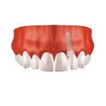 Zahnarzt Saarbrücken Implantate Einzelzahnersatz 3