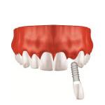 Zahnarzt Saarbrücken Implantate Einzelzahnersatz 4