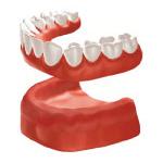 Zahnarzt Saarbrücken Implantate Totaler Zahnersatz 2