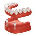 Zahnarzt Saarbrücken Implantate Totaler Zahnersatz 3