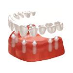 Zahnarzt Saarbrücken Implantate totaler Zahnersatz 4